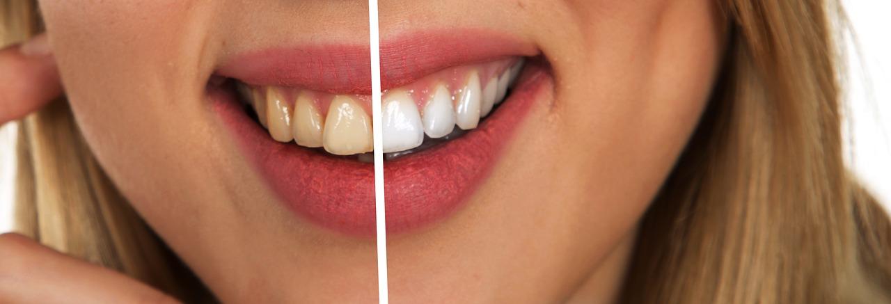 10 astuces pour avoir les dents plus blanches